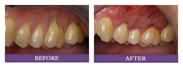 before andafter receiving receding gum rejuvenation treatment